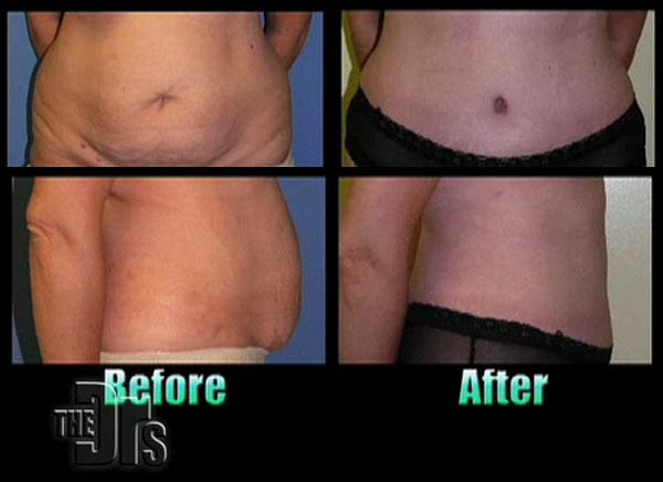 Bellies After Pregnancy. tummy tuck before and after