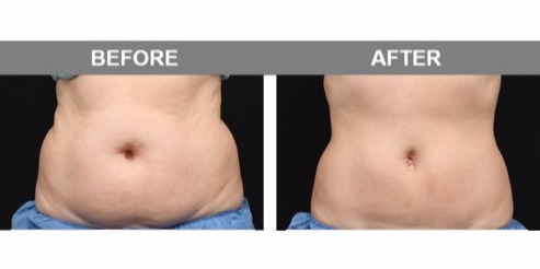 SlimSculpting -- Combo of CoolSculpting & Venus Legacy to Shrink & Tighten