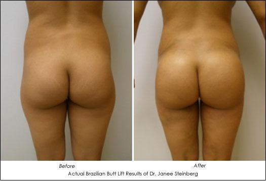 before and after photos of brazilian butt lift