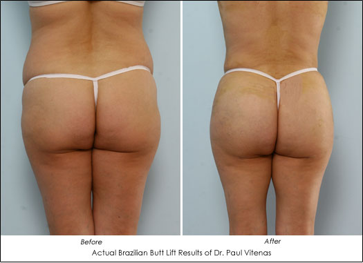 brazilian butt lift before and after pictures