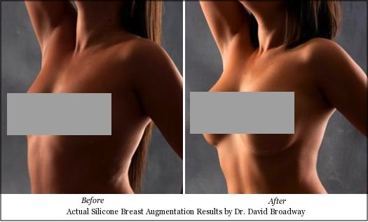 silicone before after breast augmentation