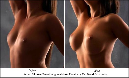 gel breast implants: