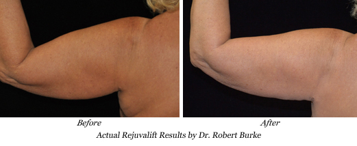 Dr. Burke uses Rejuvalift procedure on arms