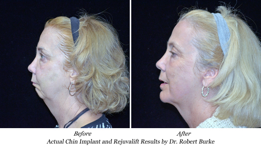 More results of Rejuvalift procedure