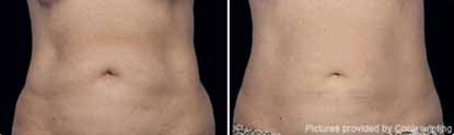 Eliminating Fat with the Latest CoolSculpting Technology