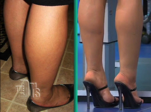 Cankle Liposuction Results from The Doctors