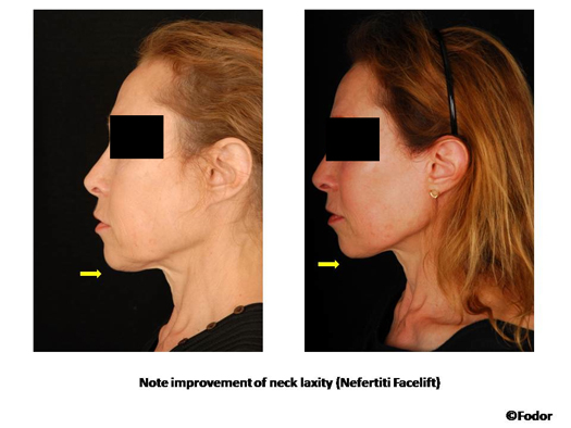 Nefertiti Neck Lift by Dr. Peter Fodor