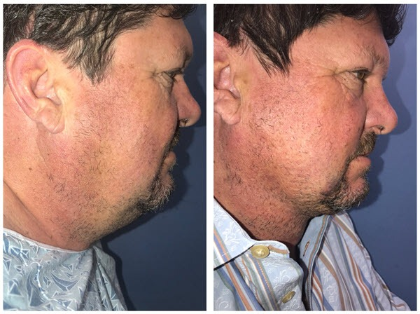 Neck Lift Alternative: Redefine the Jawline During your Lunchtime!