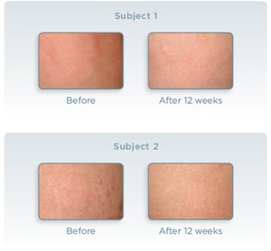 mederma before and after