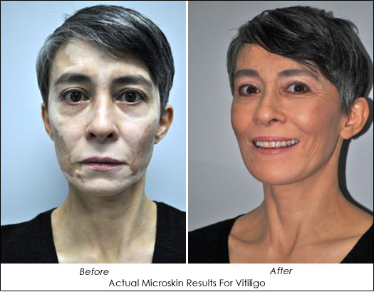 Dr. Lori Brightman Microskin Results for Vitiligo
