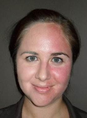 How To Reduce Red Spots On Face Naturally