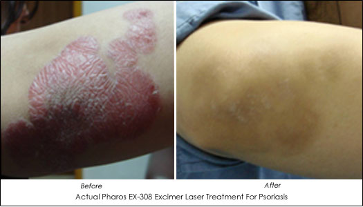 Introduction The PHAROS EX-308 Excimer laser was developed to treat psoriasis 3