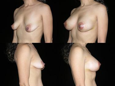 Cosmetic Surgeon Explains Tubular Breasts