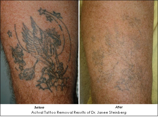Laser tattoo removal results of Dr. Janee Steinberg
