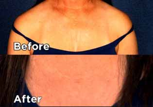 Ultherapy for Chest Wrinkles