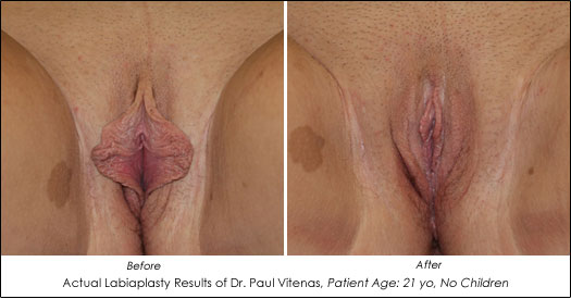 labiaplasty before and after photos