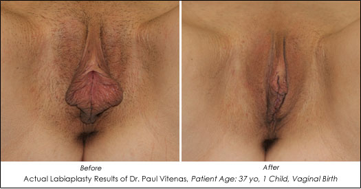 Pussy Reconstruction 85