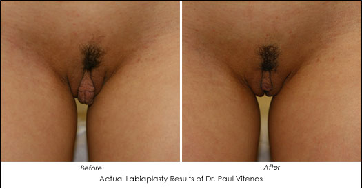 Actual Before and After Photos of Vaginal Rejuvenation