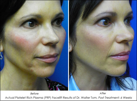 prp facelift before and after photos