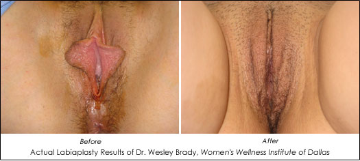 labiaplasty dallas before and after photos