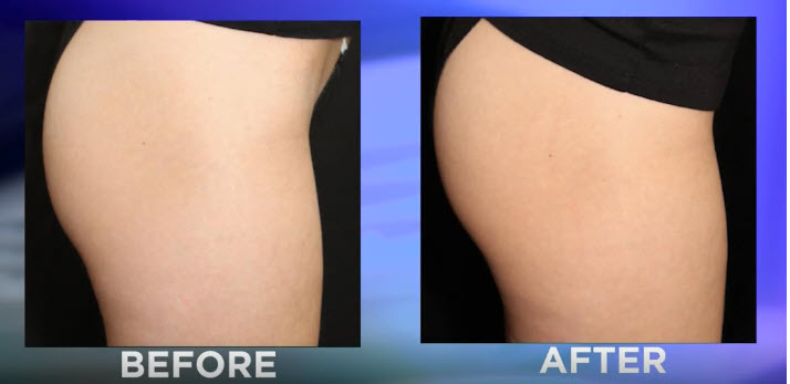 Emsculpt Butt Lift results seen on Houston ABC 13 News