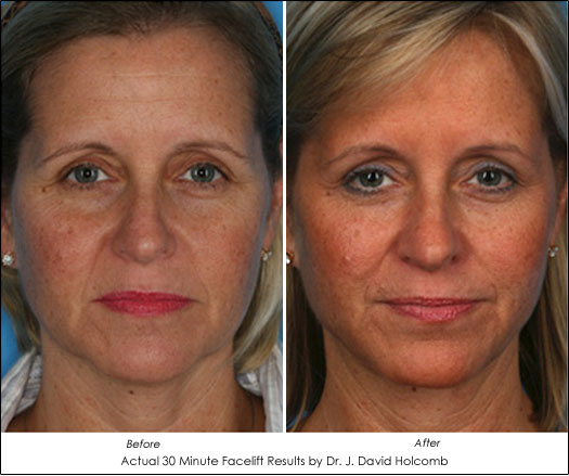 30 minute facelift