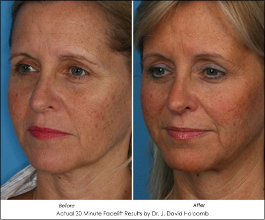 accusculpt 30 minute facelift
