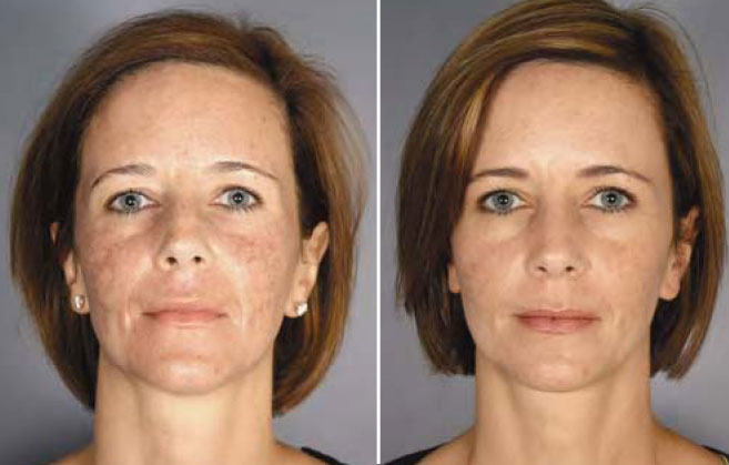 Beauty Tech Review: Fractional Resurfacing - ActiveFX - AHB