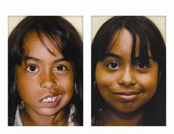 Before and after facial paralysis and