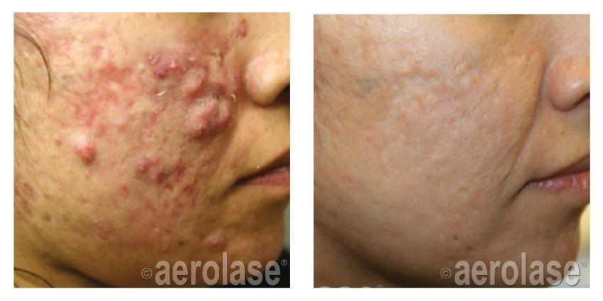 Actual Before and After Neoclear Acne Treatment