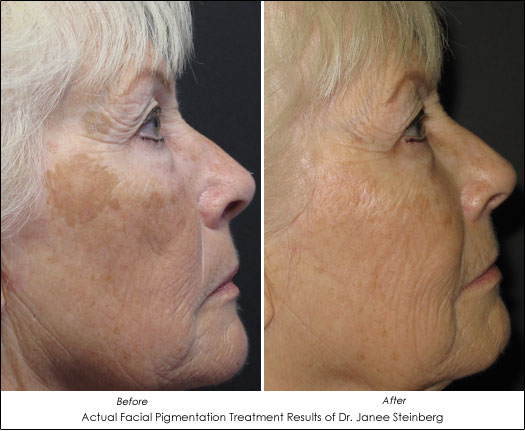Age Spots - Causes and Treatment Options - AHB