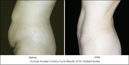 awake tummy tuck dr. robert burke