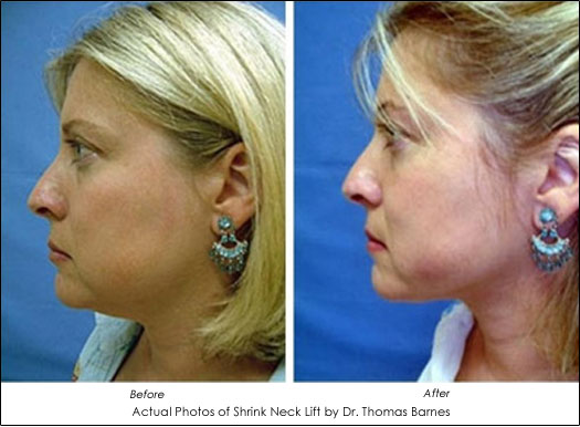 smartlipo for the neck