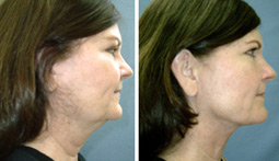 Options for Double Chin -- Newport Beach Cosmetic Surgeon Explains