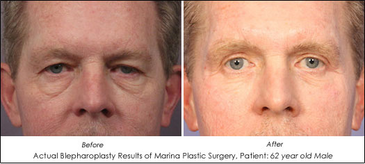 male Eyelid Lift before after results
