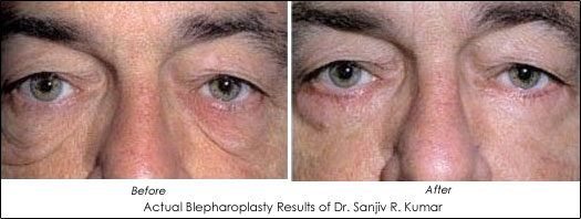 Eyelid Lift Blepharoplasty Before and After