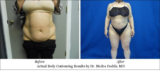 body contouring large patients