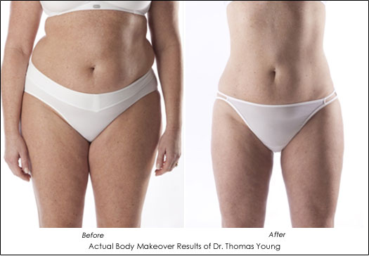 body contouring makeover before and after