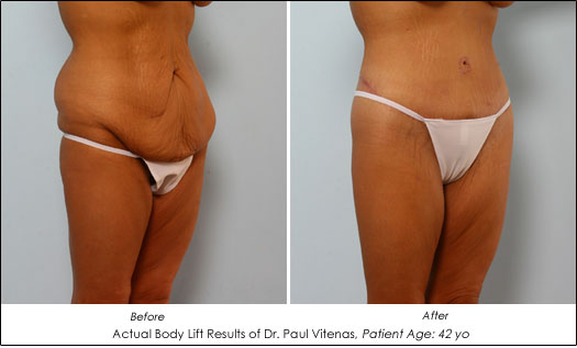 Cosmetic Surgery After Weight Loss - Body Lift - AHB