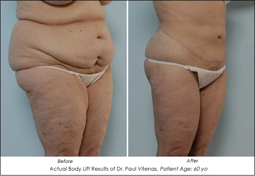 skin removal after weight loss pictures