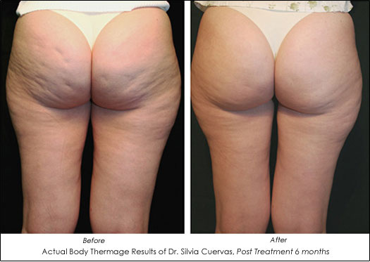 body thermage cellulite before and after photos