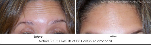 houston botox results