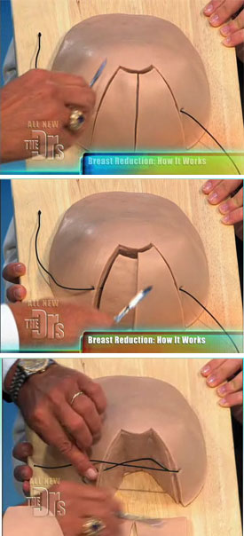 breast reduction demo on the doctors