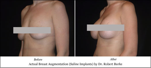 saline breast implant results