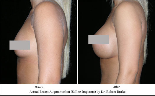 saline implant breast augmentation results