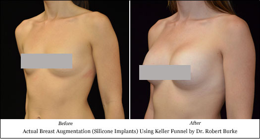 silicone breast implant results