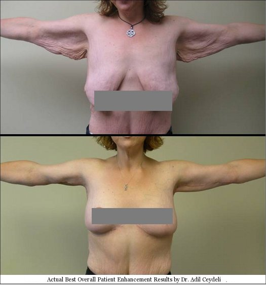 best breast reconstruction TAA