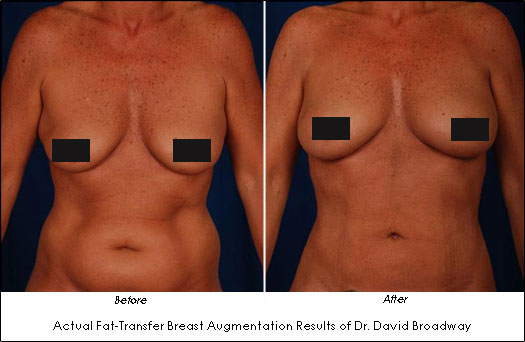 injection with fat Breast augmentation