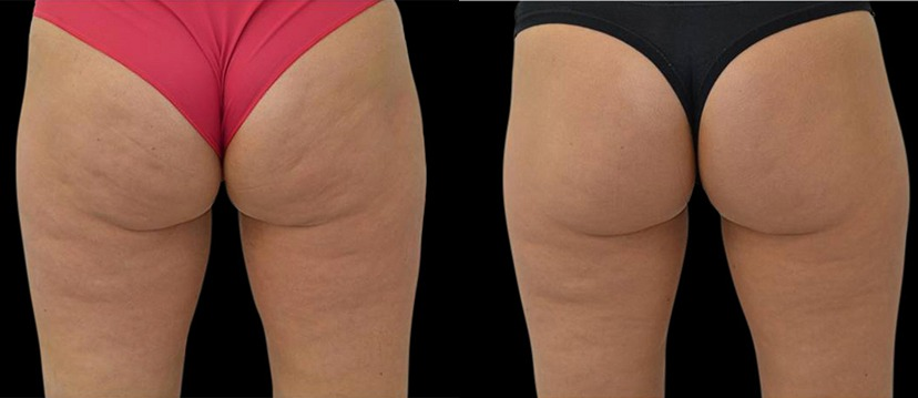Actual cellulite treatment results of BTL EMTONE