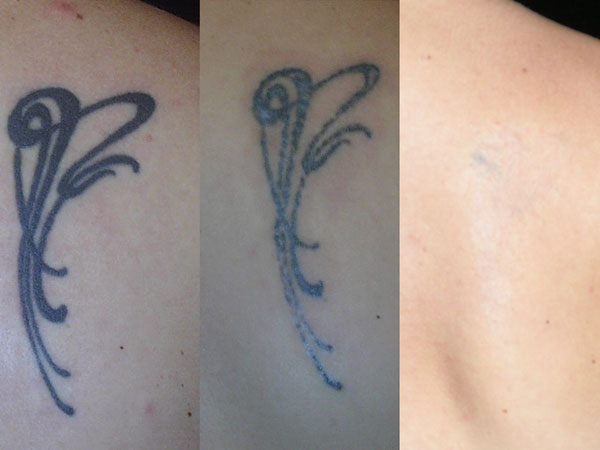 The current state of the art in laser tattoo removal ahb for Tattoo turned black after laser